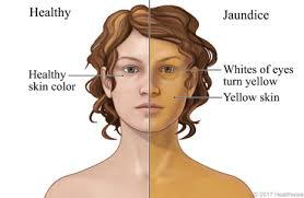 জন্ডিসের চিকিৎসা - Jaundice Treatment