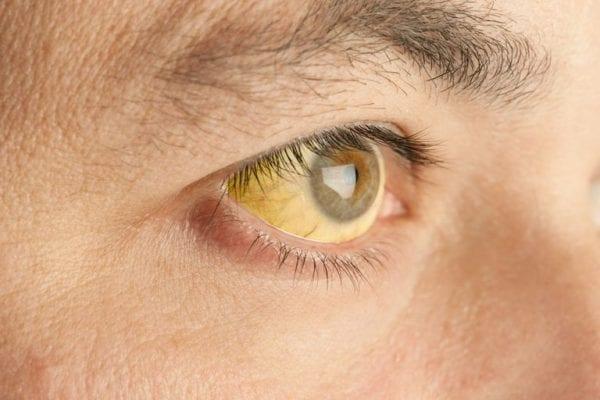 জন্ডিসের লক্ষণ - Symptom Of Jaundice