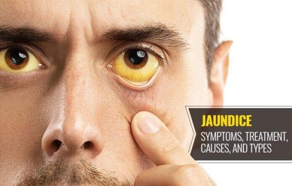 জন্ডিস কি - What is Jaundice