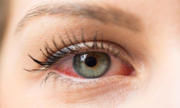 ধূমপান চোখের সমস্যা সৃষ্টি করে - Smoking Causes Eye Problems