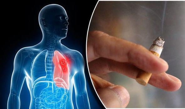 ফুসফুসে ক্যান্সার - Lung Cancer