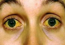 Symptom Of Jaundice In Bengali