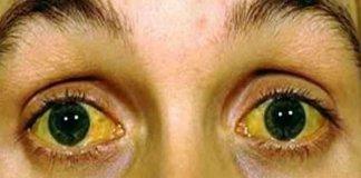 Symptom Of Jaundice In Bengali