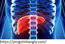লিভারের সমস্যা (Liver problems)