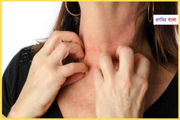 এলার্জি কেন হয় (Why are allergies)